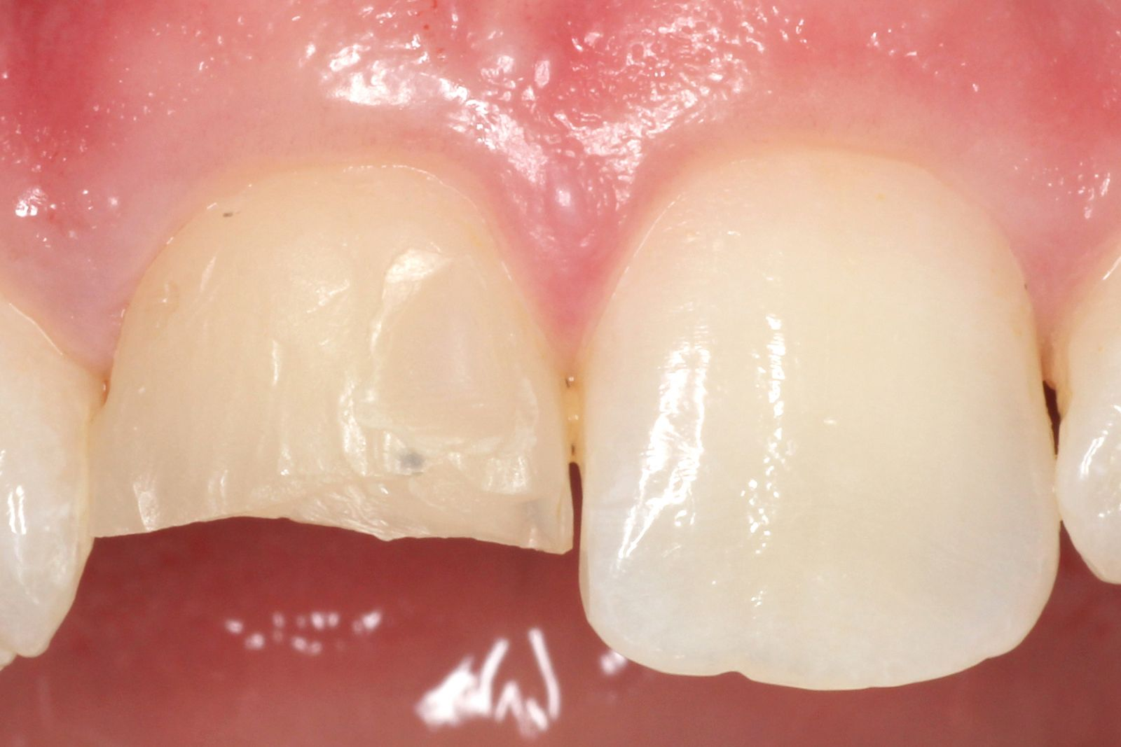 Before CEREC